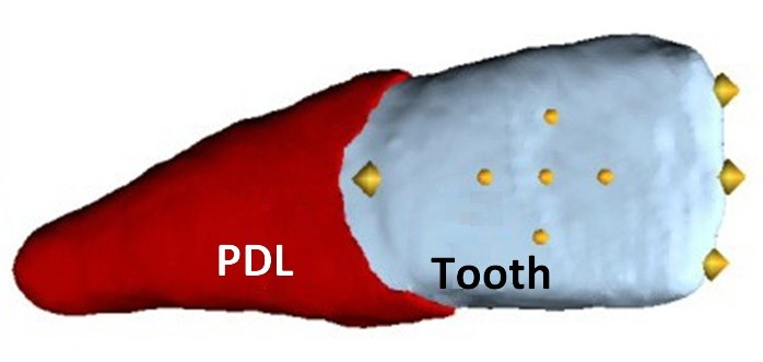 The tooth reconstructed from radiological data is embedded in the red-colored periodontal ligament (shown without the bone). The loads act on the points shown in the middle portion of the tooth crown as yellow spheres. (Image: University of Ulm)